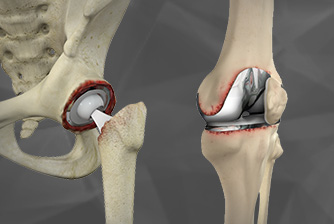Minimally invasive hip replacement surgery